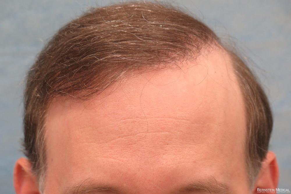0b_after-hair-transplant-repair_eti.jpg