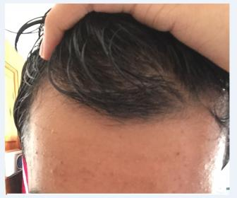 Why Is My Hair Thinning Male