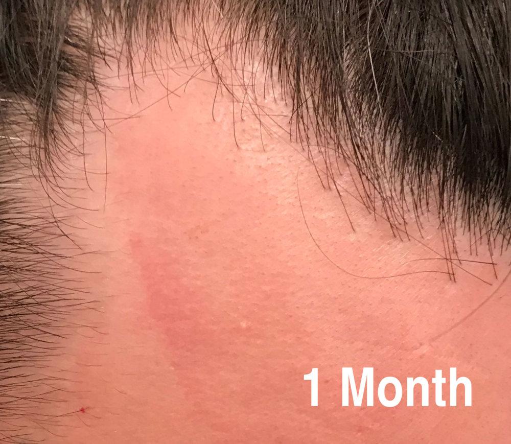 1-month.jpg