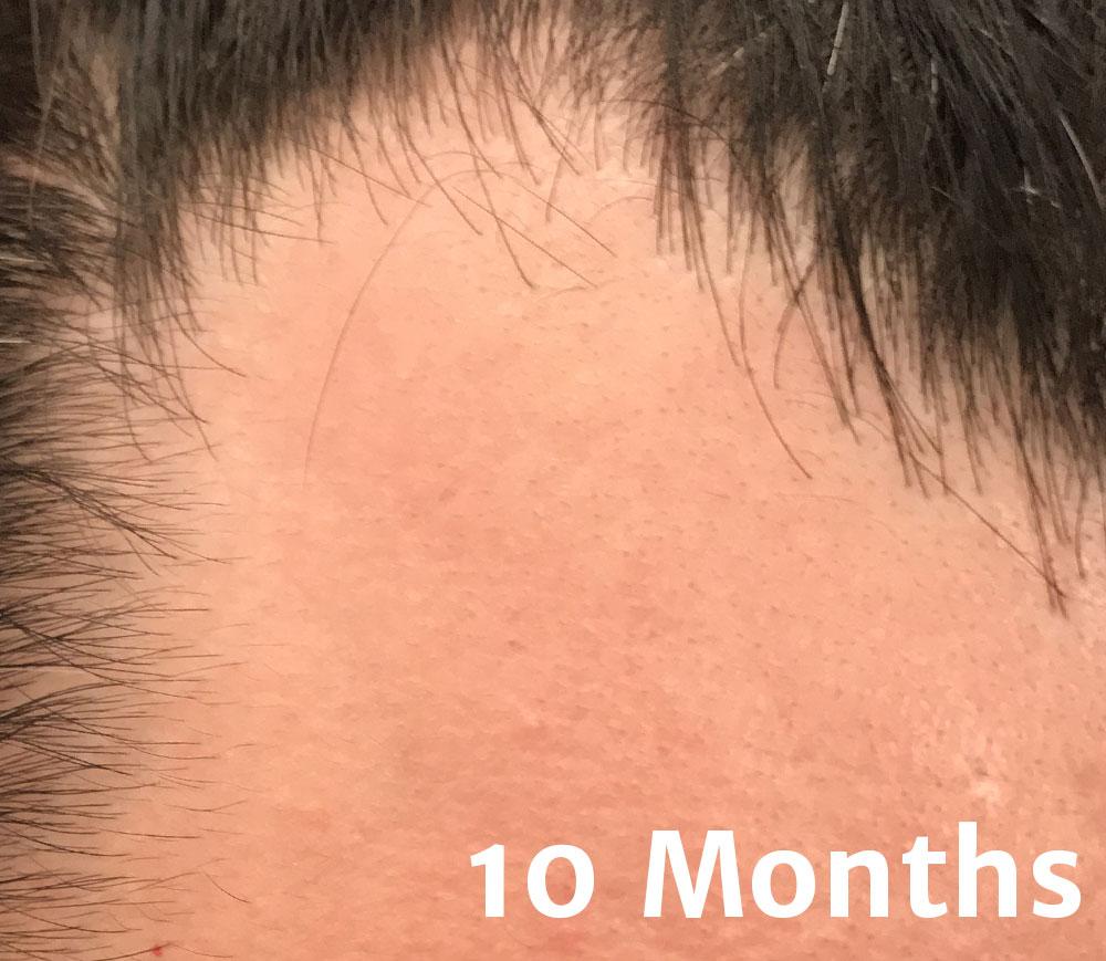 10-months.jpg