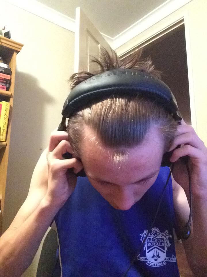 Receding Hairline At 16 Pictures Hairlosstalk Forums