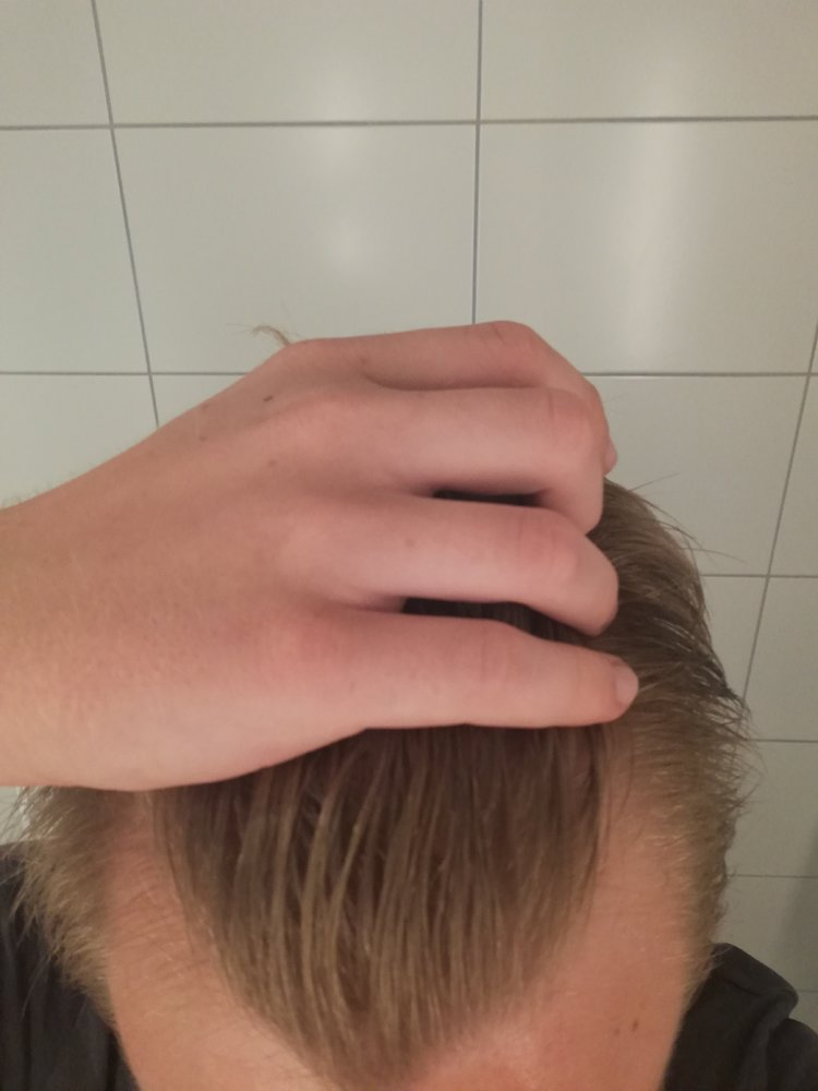 Started Dutasterid Today Ran Fina Before Hairlosstalk Forums