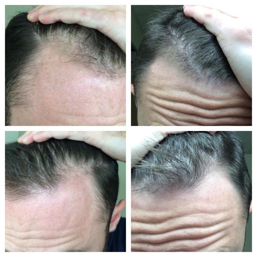 2 Months Progress Finasteride Rogaine Hairlosstalk Forums