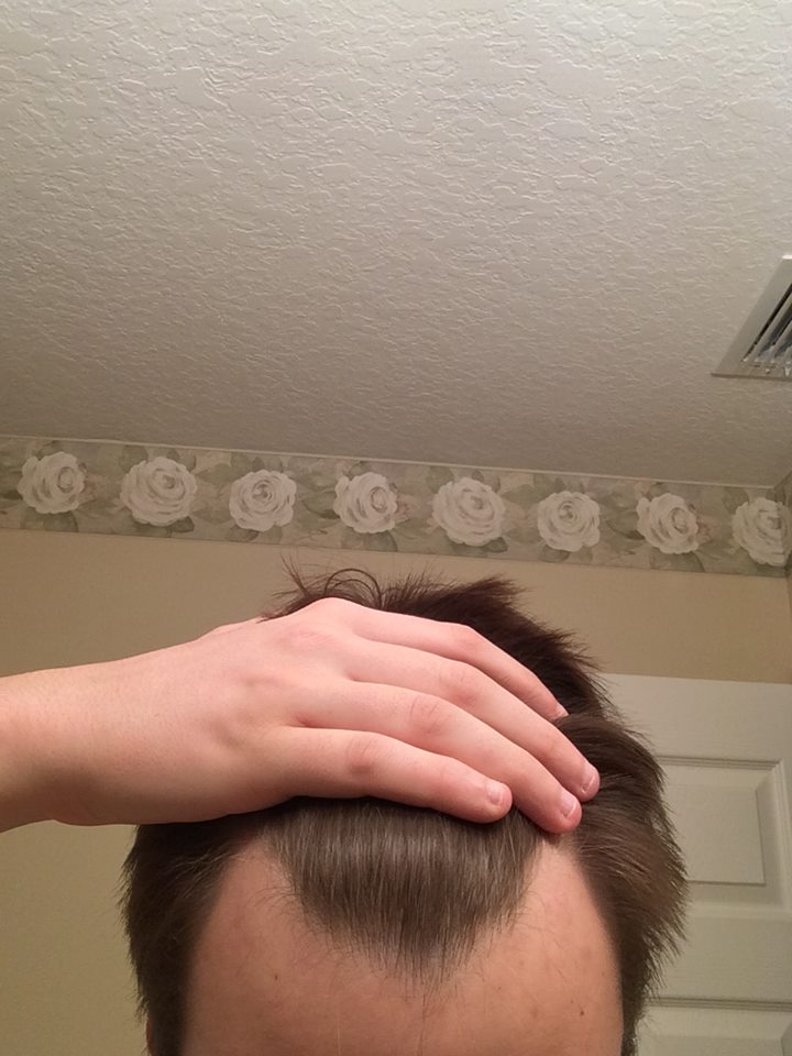 Receding Hairline At 16 Years Old Hairlosstalk Forums