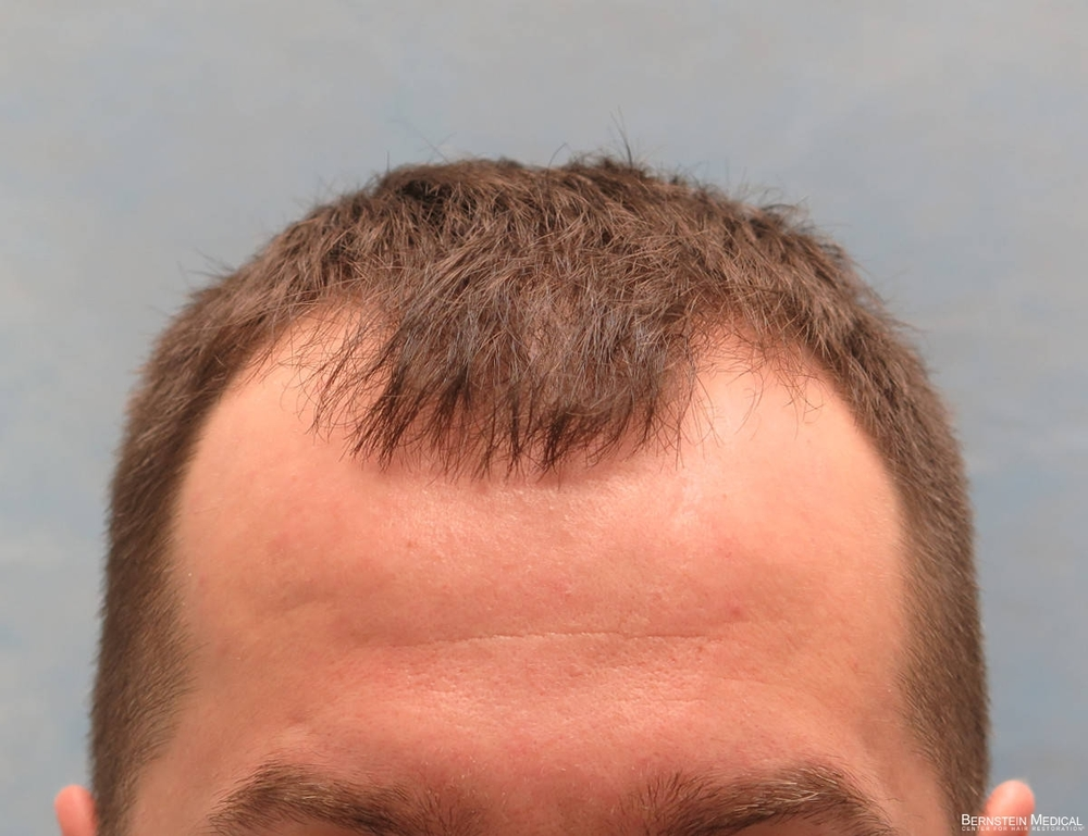 1a_before-hair-transplant_kzk.jpg