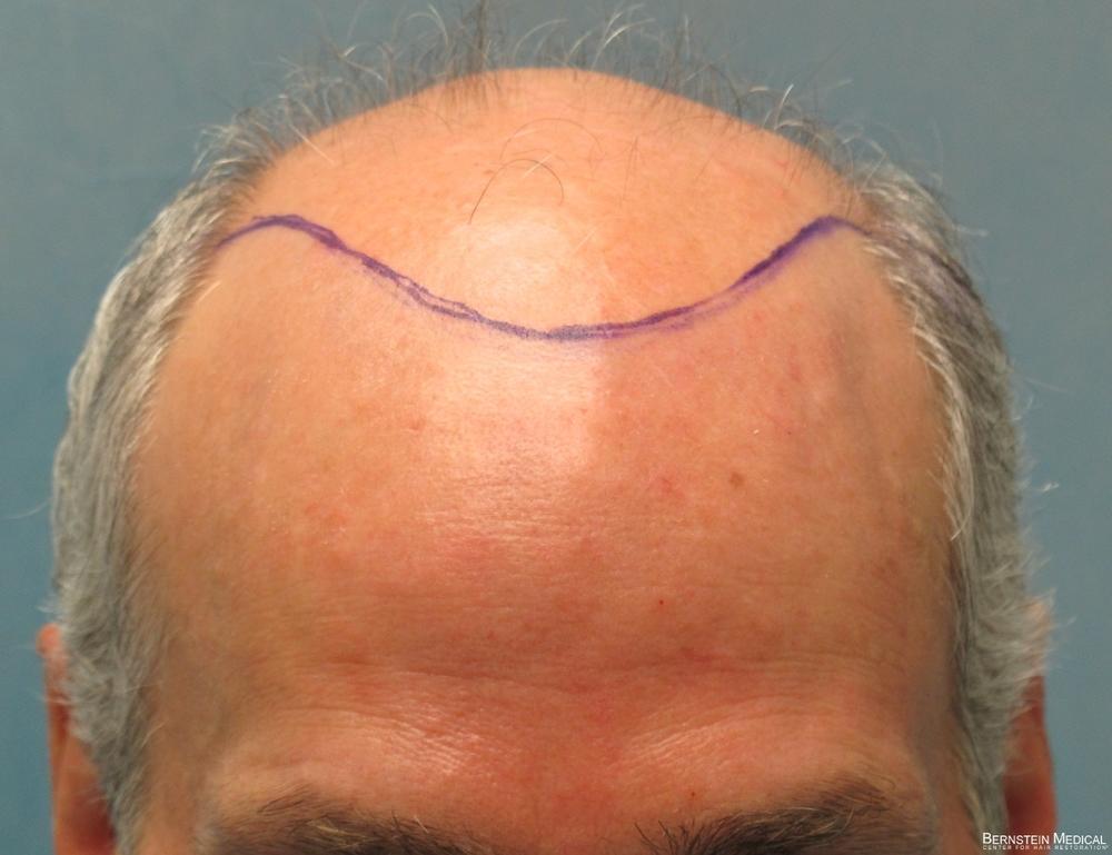 1b-planned-position-of-hairline-avz.jpg
