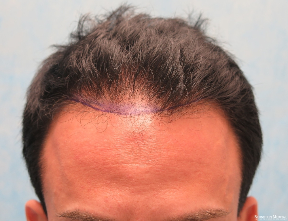 1b-position-of-planned-hairline-ctc.jpg