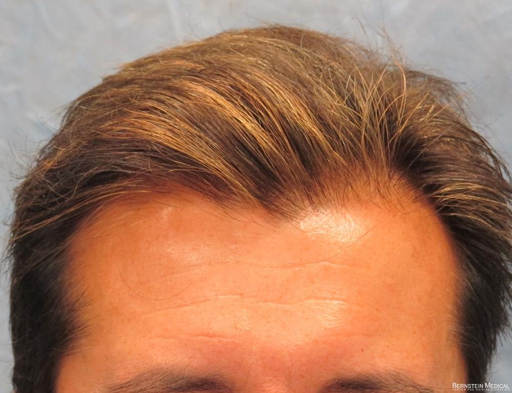 1b_after-hair-transplant_odq.jpg