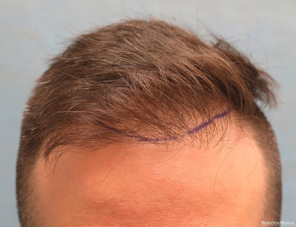1b_position-of-hairline_cfq.jpg