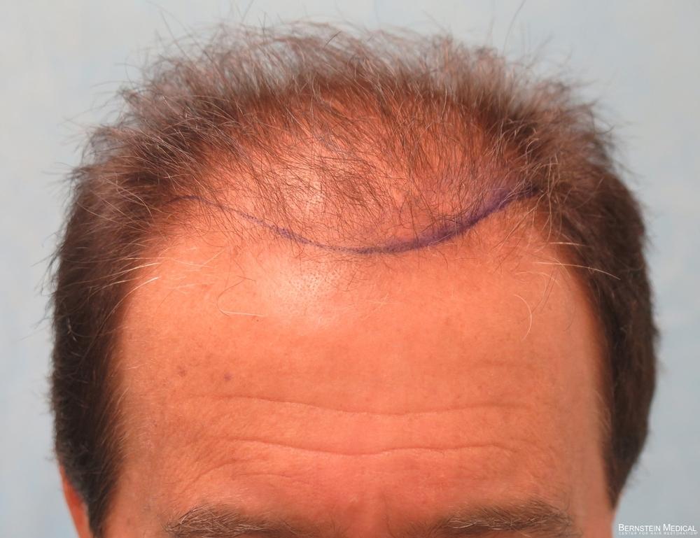 1b_position-of-hairline_hnz.jpg