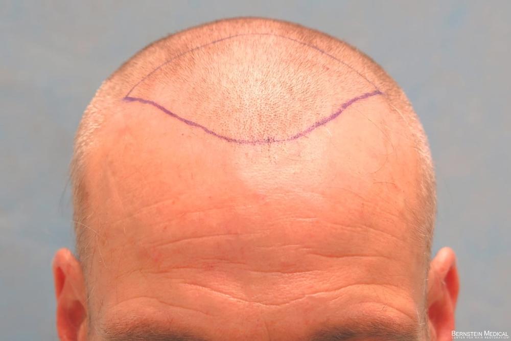 1b_position-of-hairline_lki.jpg