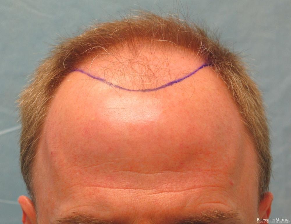 1b_position-of-hairline_rfr.jpg