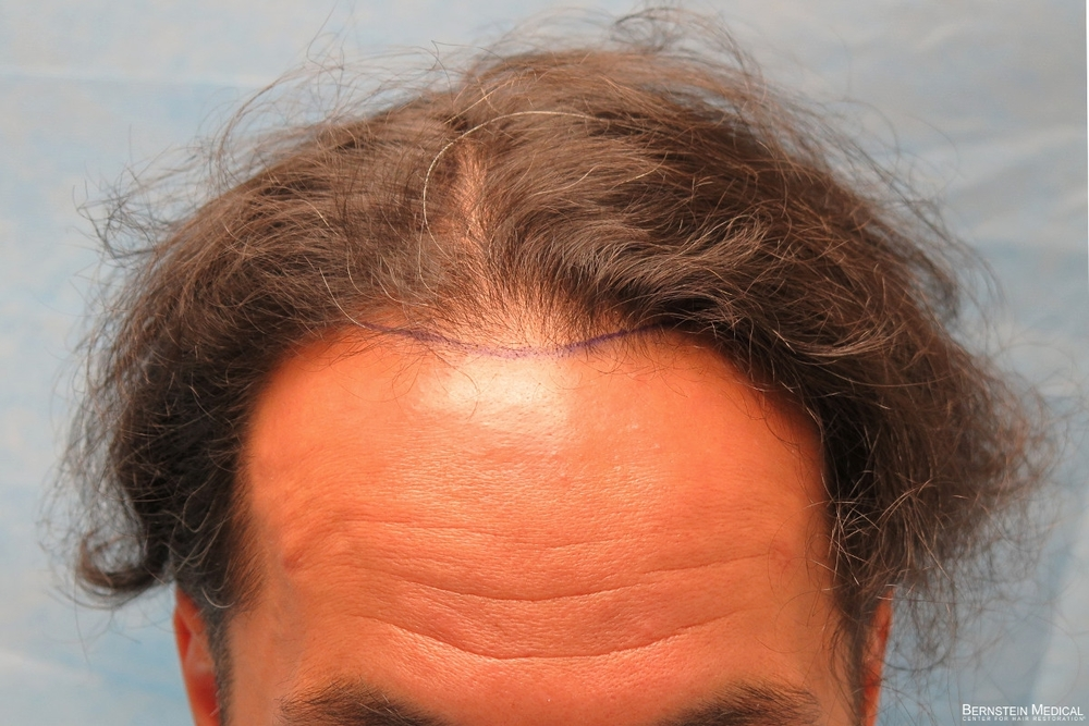 1b_position-of-hairline_znq.jpg