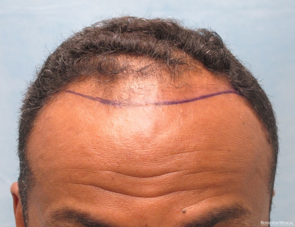 1b_position-of-planned-hairline_ijc.jpg