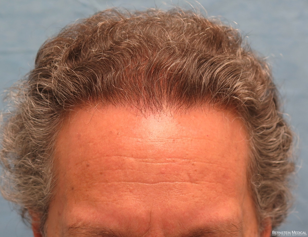 1c_after-hair-transplant_qwe.jpg