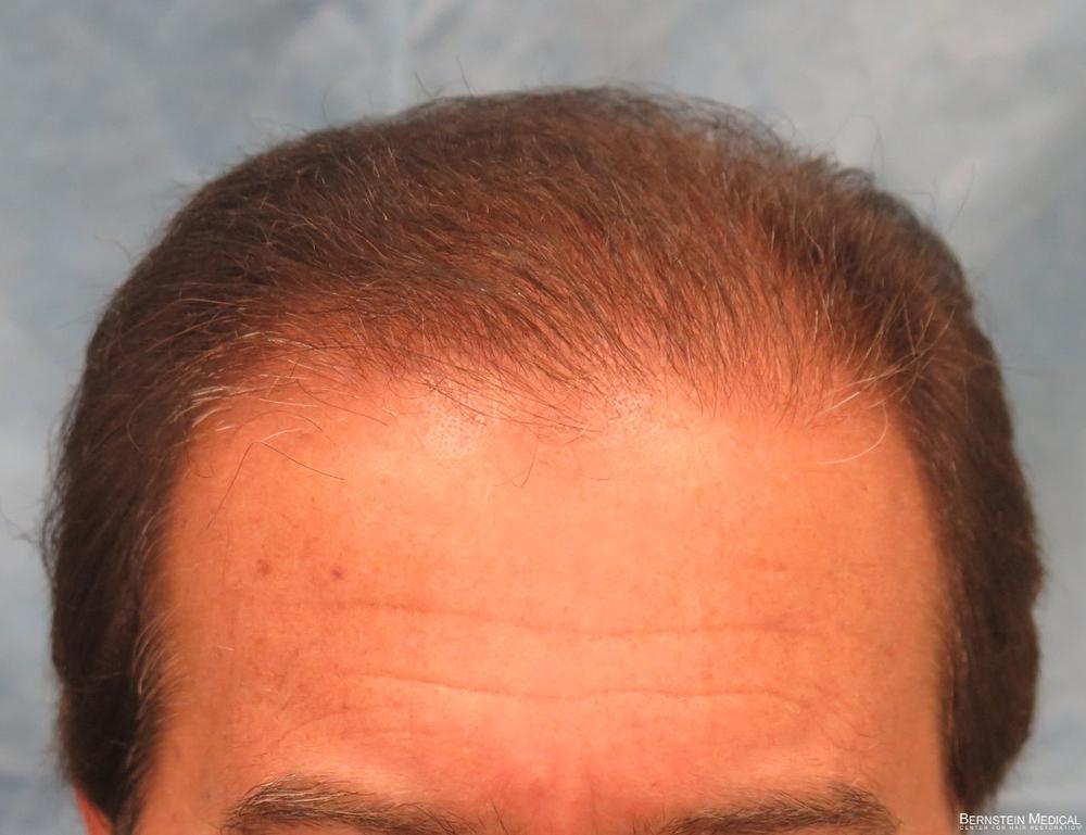 1d_1-year-after-hair-transplant_hnz.jpg