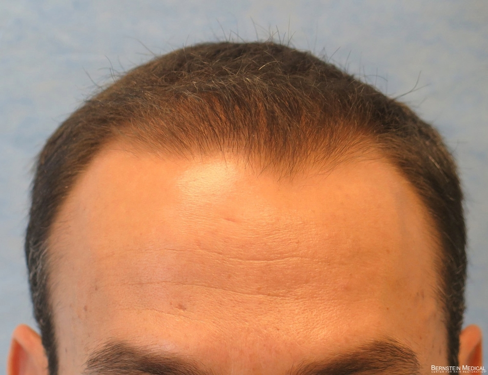 1d_after-hair-transplant_acb.jpg