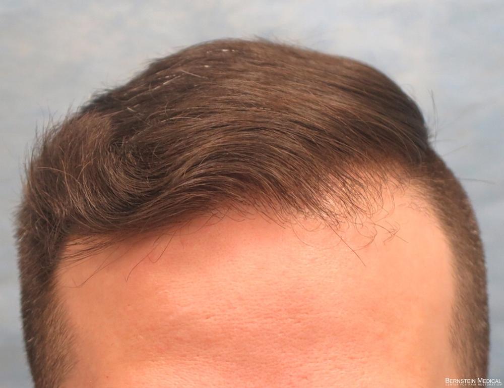 1d_after-hair-transplant_cfq.jpg