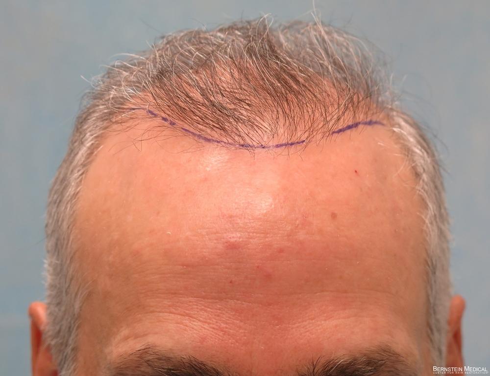 1e-planned-position-of-second-hairline-avz.jpg