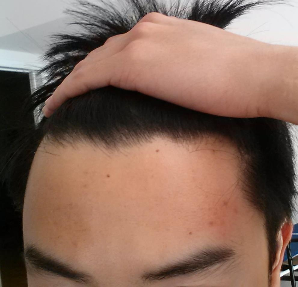What Options Do I Have For Reducing My Forehead Size Appearance