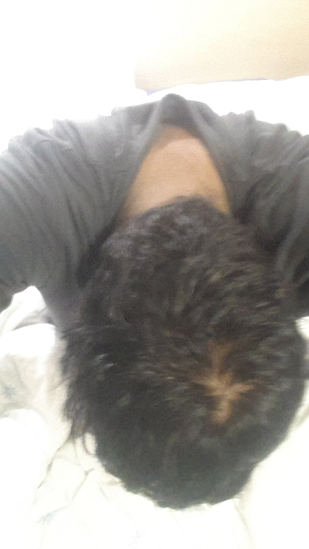 Male 18 Is My Crown Thinning Or Is This Just A Natural Hair Whorl