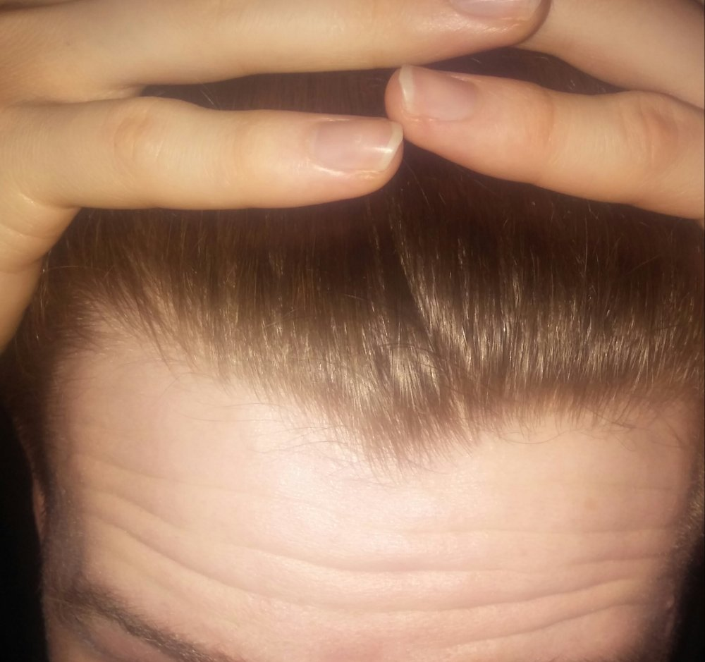 Signs of mature hairline