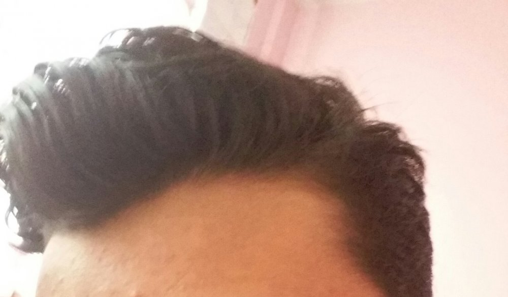 16 Year Old Slightly Receding Hairline Unsure Whether Its Pattern