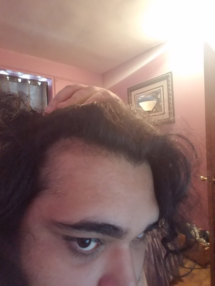 Advice On Switching From Finasteride To Dutasteride Hairlosstalk Forums
