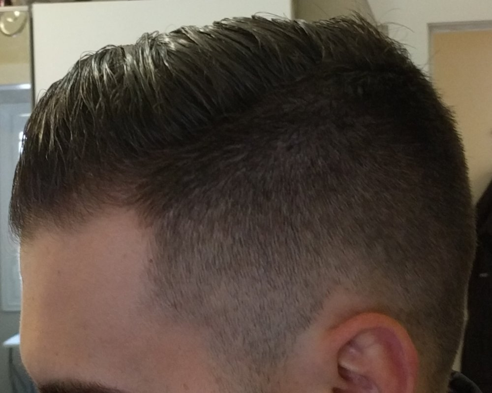 Started Taking Dutasteride Today Here S My Log With Pics Hairlosstalk Forums