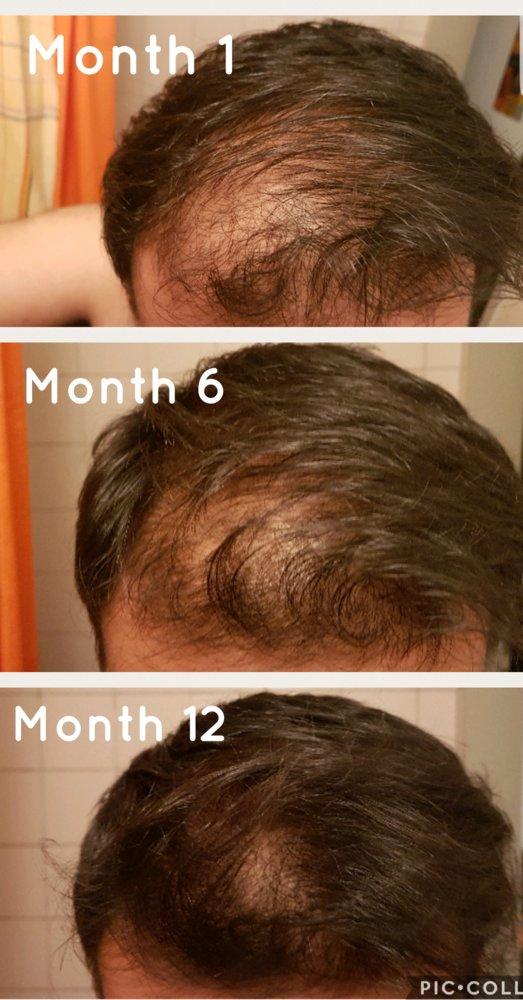 Restarting Minoxidil And Dutasteride Treatment Works Hairlosstalk Forums