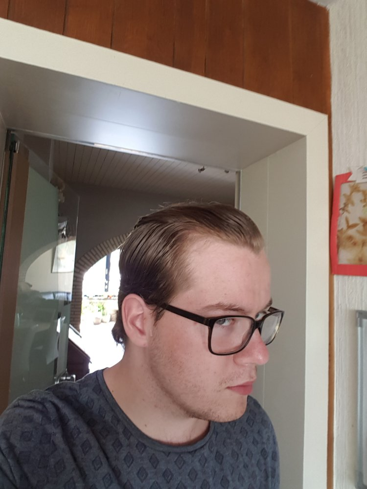 Messages mature hairline mistaken for baldness any case