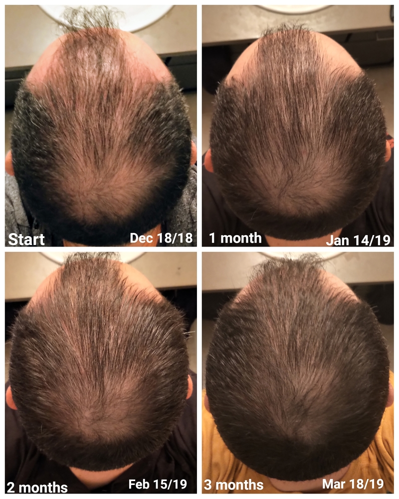 Microneedling Photo Results Summary | HairLossTalk Forums
