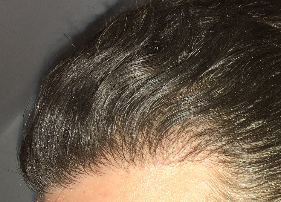Image Led Add Volume To Hair For Men Step 2