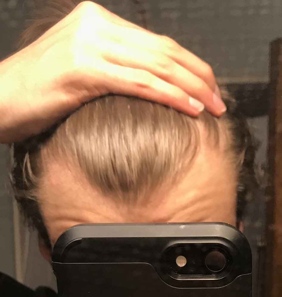 Do I Have A Receding Or Maturing Hairline Hairlosstalk Forums