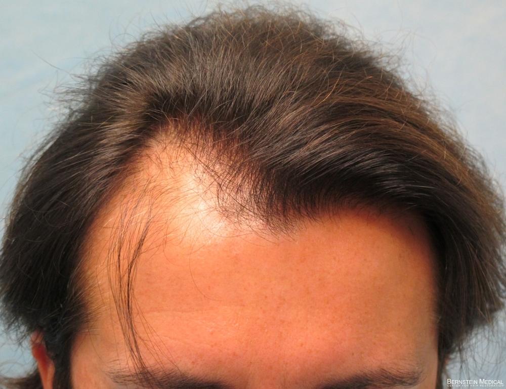 2a_before-hair-transplant_top_odq.jpg