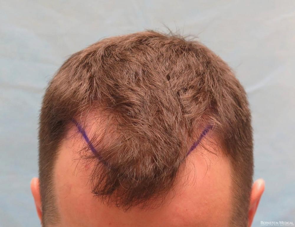 2b_plannd-hairline-top-view_kzk.jpg