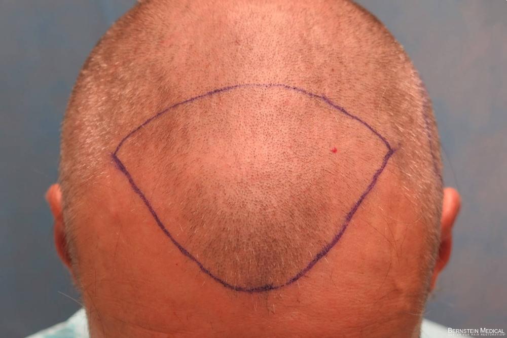 2c_shaved-head_top-view_lki-1s.jpg