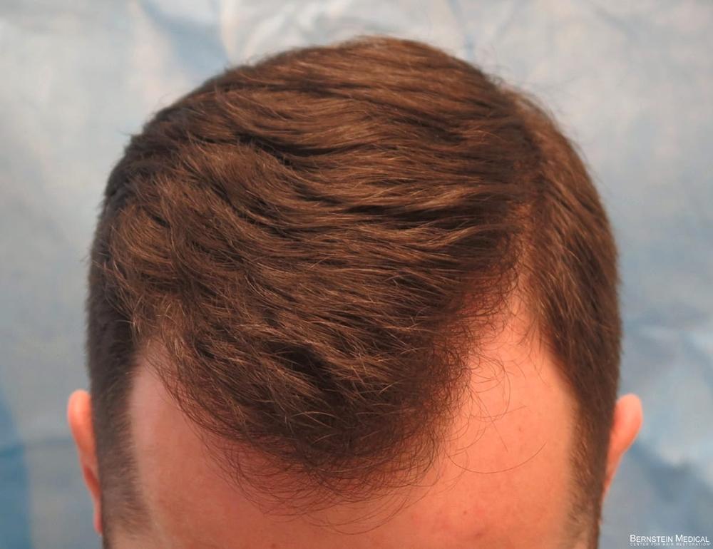2d_after-hair-transplant_kzk.jpg