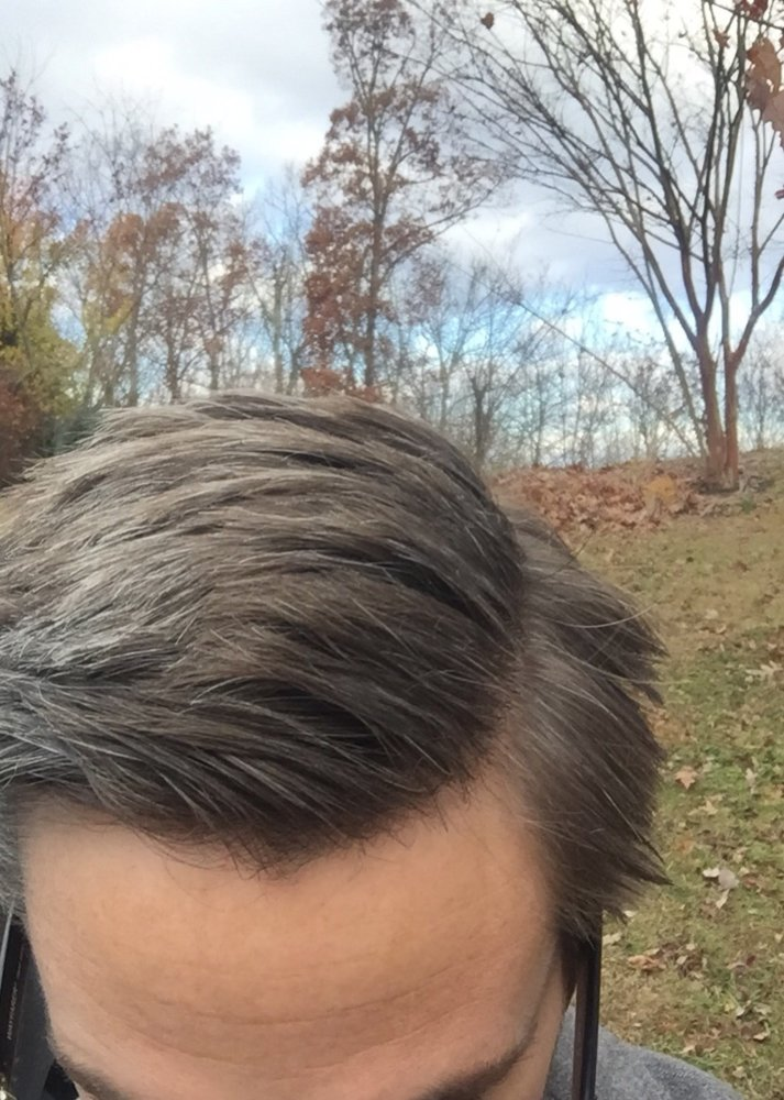 One Year Results On Finastride 16 Months On Minoxidil Hairlosstalk Forums