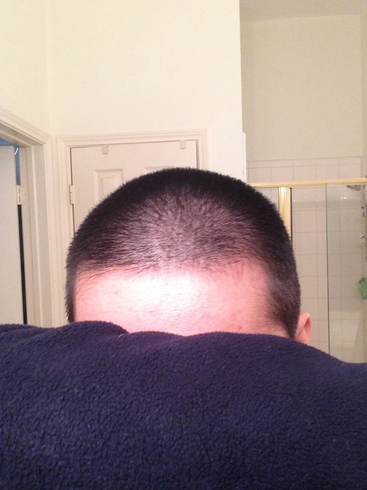 Asian Dude On Reddit Gets Solid Regrowth 0 25mg Finasteride Only 3 Times A Week Hairlosstalk Forums