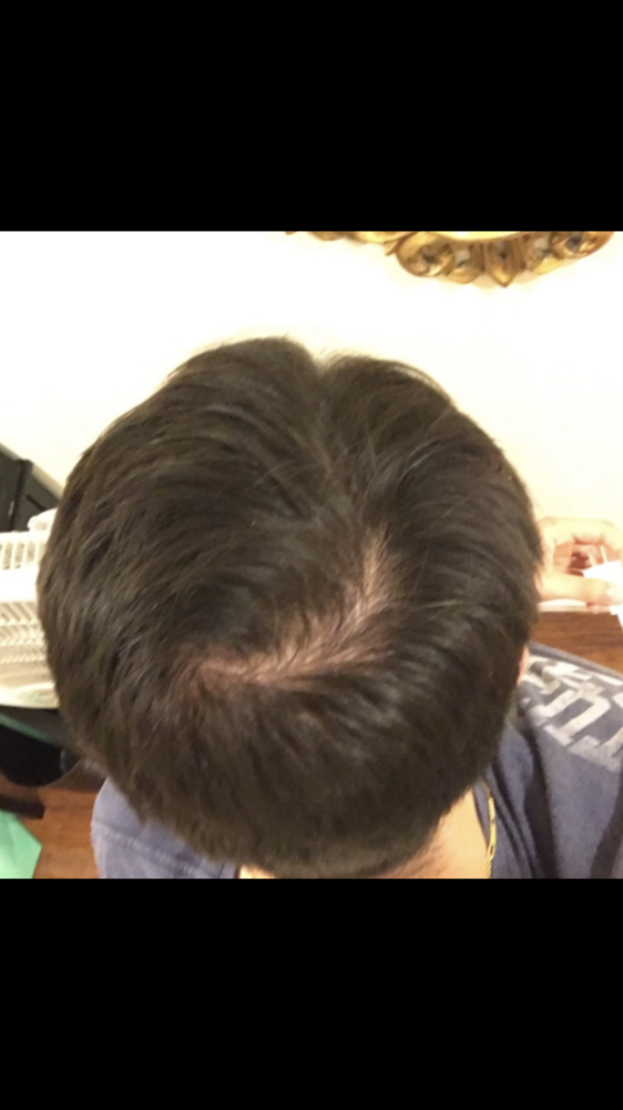 Am I Thinning Or Is This My Hair Whorl Hairlosstalk Forums