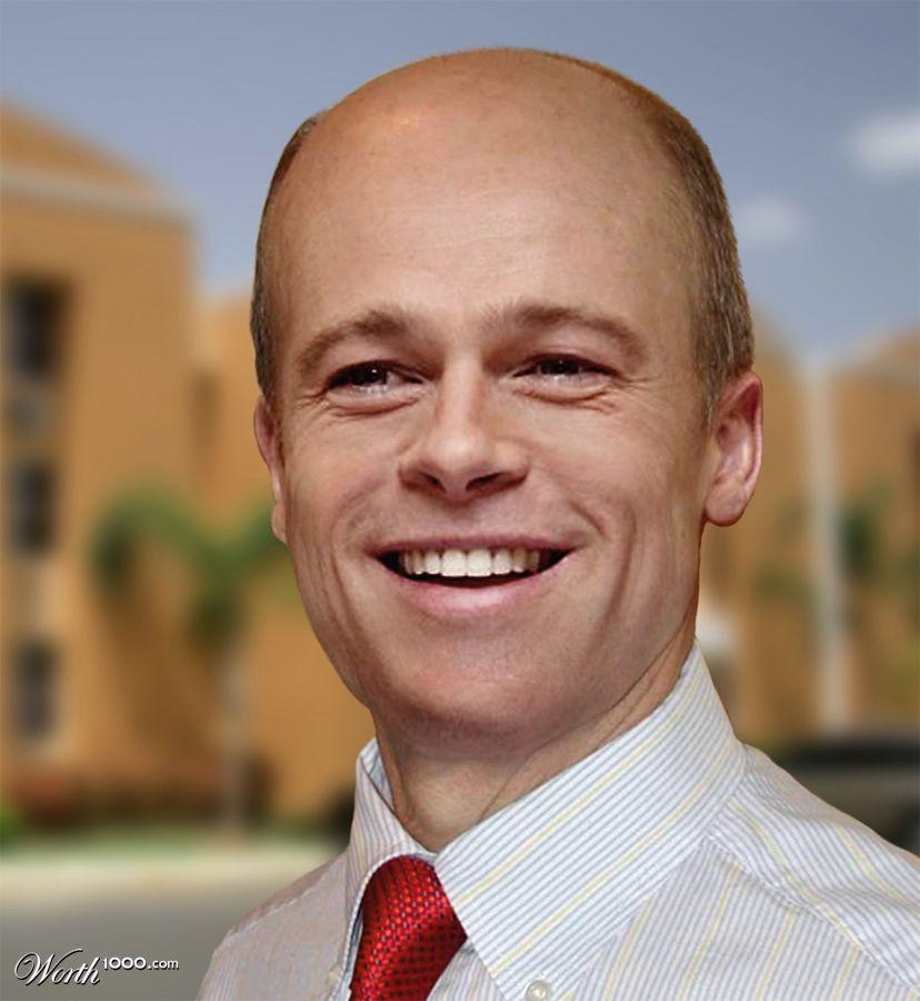 Is balding unattractive