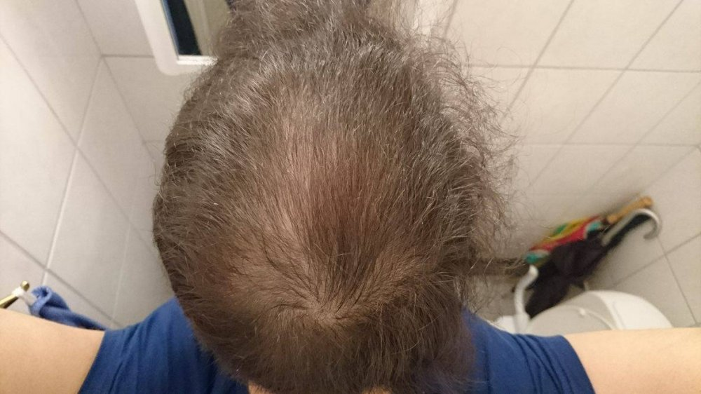Balding Since 11 Years Old Considering Finasteride My Story Page 3 Hairlosstalk Forums