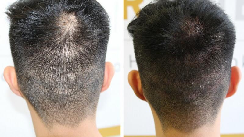 adding-density-to-hair-1.jpg