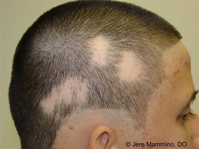 alopecia_areata_1_high.jpg