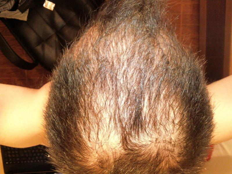 Finasteride And Low Dose Dutasteride Treatment Androgenetic Alopecia Hairlosstalk Forums