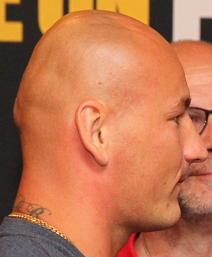 Bald Celebs With Weird Head Shapes Who Are Still