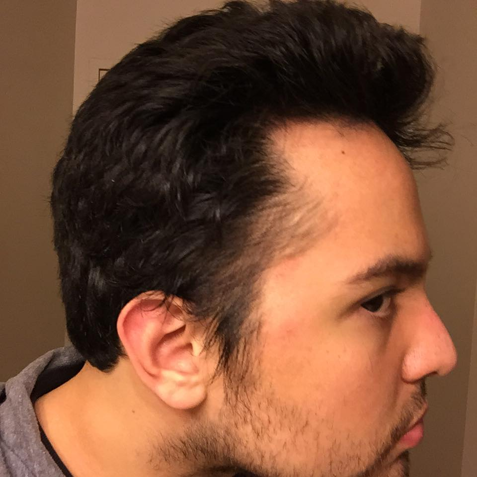So I Went To Get A Haircut Like The Person Above Suggest Right Side Now Looks This When Slick It Back