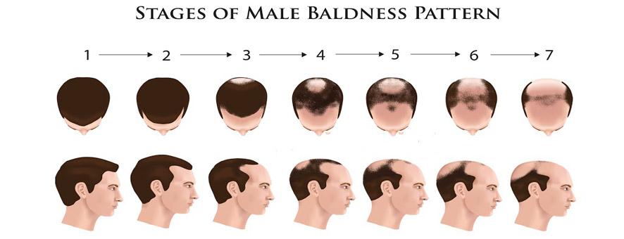 [Image: bald-jpg.84339]