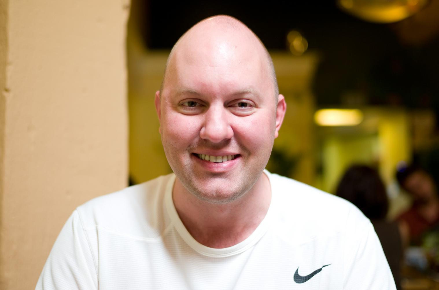 Going bald shaped head weird Celebrities Who